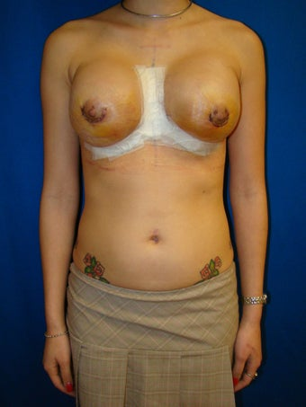 Breast Augmentation Revision after 78895