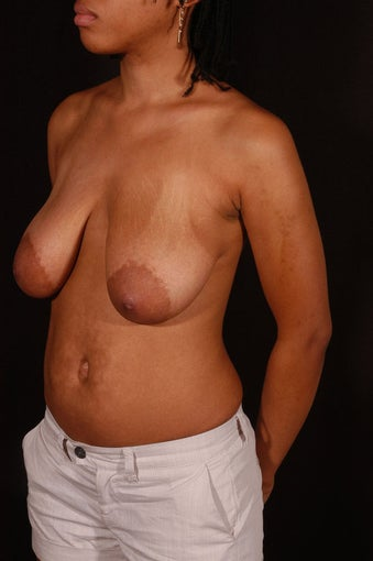 Breast Reduction before 150017