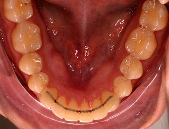 Invisalign after 208627