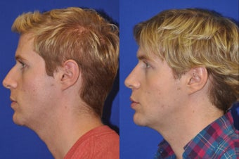 Endonasal Rhinoplasty before 278347