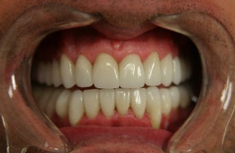 smile makeover with porcelain veneers after 625416