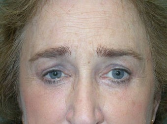 Upper and Lower Lid Blepharoplasty and Cheeklift after 148579