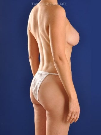 Vaser Hi Def Liposuction of abdomen, thighs, flanks and back with fat injections to buttocks 422680