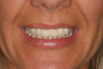 Dental crowns, dental implants, dental veneers after 569204