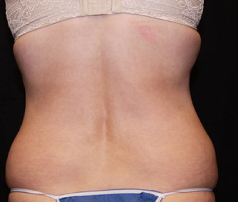Laser Liposuction before 362280