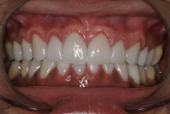 Porcelain Veneers after 213075