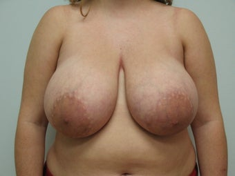 Breast Reduction before 126765