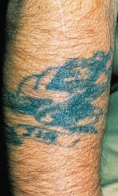 Laser tattoo removal  before 374505
