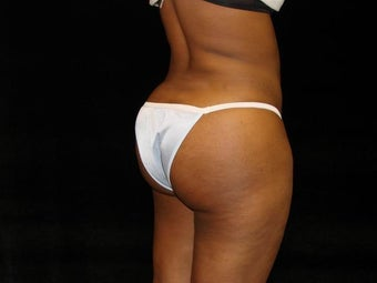 Buttocks Augmentation after 222569