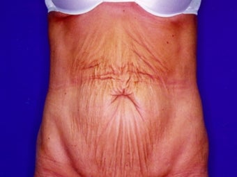 Tummy tuck after massive weight loss before 91226