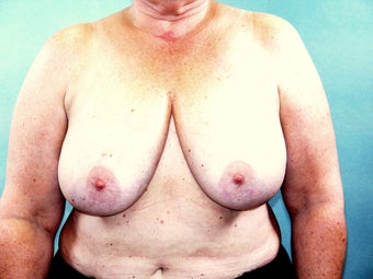 Breast Reconstruction before 221549