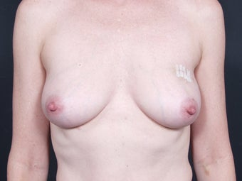 45 Year Old Female for Breast Reconstruction before 643215