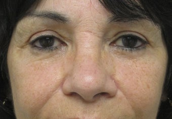 Browlift, upper and lower blepharoplasty, cheek lift