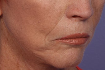 Radiesse and Juvederm - Smile lines 309227