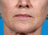 Laser resurfacing-Erbium ablative resurfacing before 459010