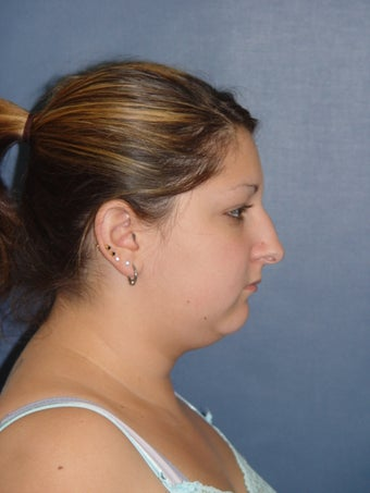 Rhinoplasty, Neck Liposuction & Chin Implant before 331125