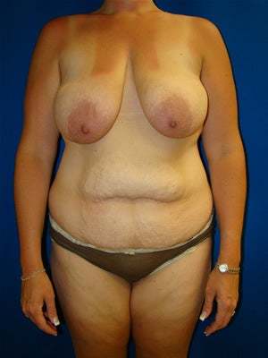 Breast Lift, Breast Reduction Surgery