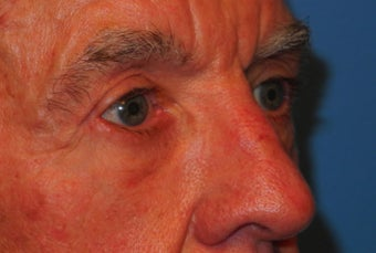 Extended lower lid blepharoplasty 480035
