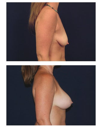 Breast Augmentation with Lift before 287017