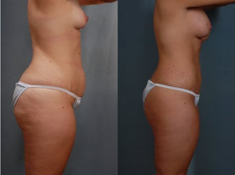 Mommy Makeover, Tummy Tuck, Liposuction, Breast Augmentation before 313068