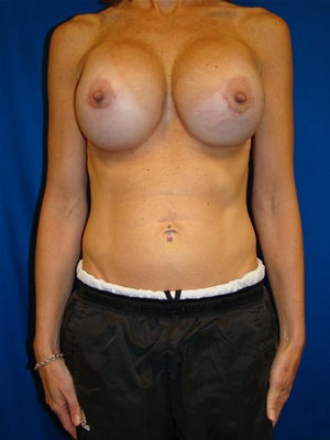 Revisionary Breast Surgery after 100710