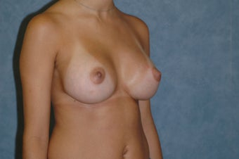 Breast augmentation after 389532