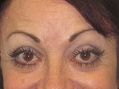 Brow Lift after 541478