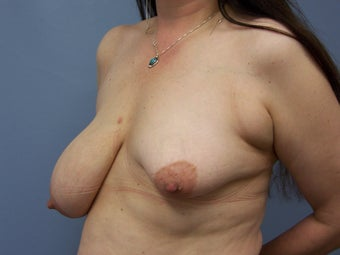 Breast Reconstruction 589935