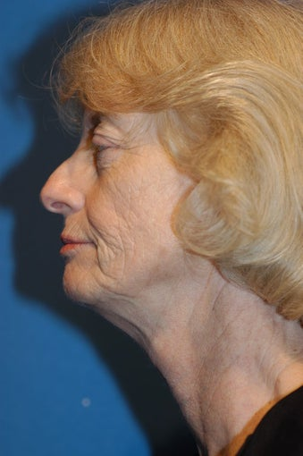 Facelift, Neck Lift and Facial Fat Grafting before 141289