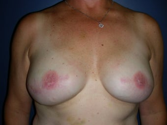 Breast Reconstruction-Direct-to-Implant  after 581332