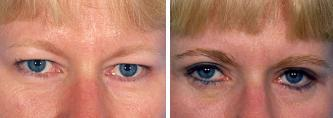 Blepharoplasty before 643210