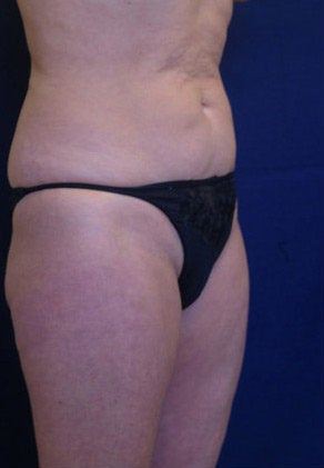 Tummy Tuck / Abdominoplasty before 55020