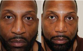 African-American Rhinoplasty Male Nose Job before 128280