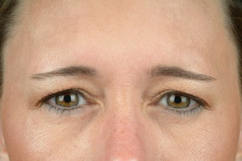 Botox after 531606