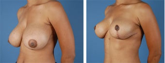 Breast Reduction 355740
