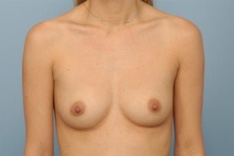 Breast Augmentation with Silicone Gel Implants before 344242