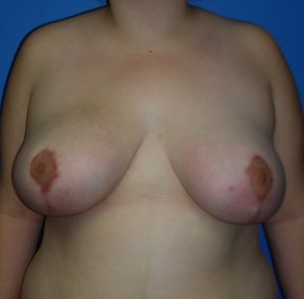 Breast Reduction/Lift with implant after 248363