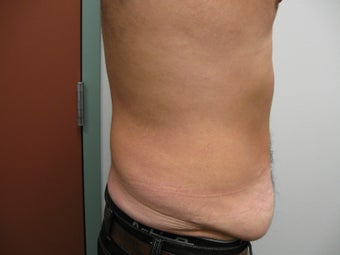 Abdominoplasty on 42 Year Old Male 340025