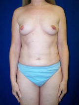 Extra Large Breast Augmentation Surgery before 125016