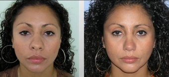 Rhinoplasty before 165806
