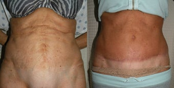 Tummy Tuck Revision before 400493