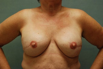 Breast Reconstruction after 221549