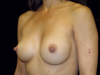 Breast Implant Replacement 506017