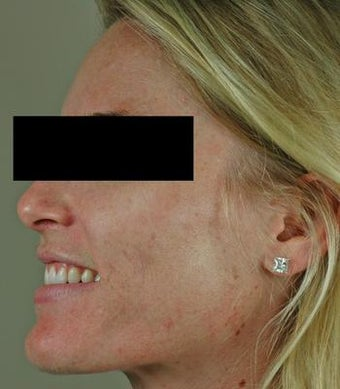 Laser Acne Treatment after 82951
