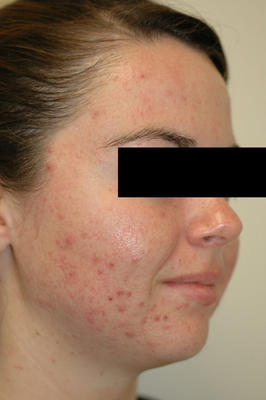 Laser Acne Treatment before 82991