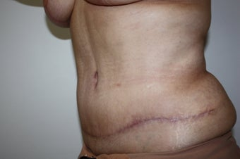 abdominoplasty after 211422