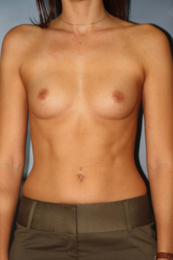 Breast Augmentation before 515232