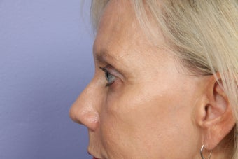Eyelid Surgery after 306432