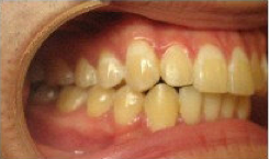 Invisalign Treatment after 346651