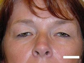 Blepharoplasty before 252432